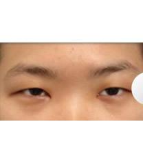 韩国天鹅整形外科眼部综合整形对比图_术前