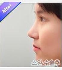韩国天鹅整形外科隆鼻手术对比图_术后