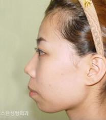 韩国天鹅整形外科双颚手术对比图_术前