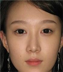 韩国CNMcoanmi外科双眼皮案例_术后