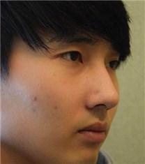 韩国CNM(coanmi)外科鼻部矫正案例_术后