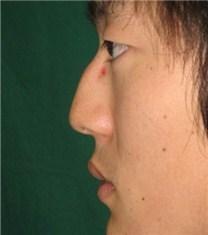 韩国CNM(coanmi)外科隆鼻案例_术前