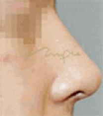 驼峰鼻矫正案例_术后