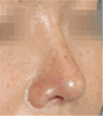 鼻综合整形对比案例_术后