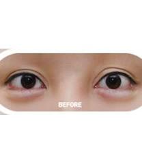 韩国拉里整形医院芭比眼整形对比图_术前