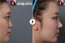 爱婷与拉里整形医院韩式小翘鼻案例+效果对比