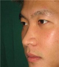 韩国CNM(COANMI)整形外科医院鹰钩鼻案例对比图_术前