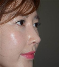 韩国可安美(CNM)整形外科鼻子修复对比图_术后