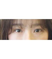 韩国CNMcoanmi外科整形双眼皮手术案例对比图_术后