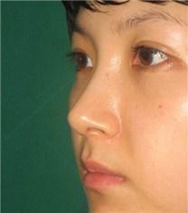 韩国CNMcoanmi整形外科医院自体软骨隆鼻案例_术后