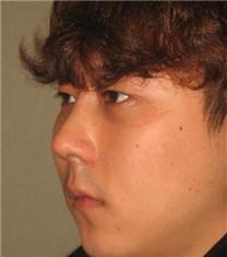 韩国CNMcoanmi外科整形驼峰鼻整形对比案例_术后