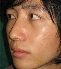 韩国可安美(CNM)整形外科鹰钩鼻修复对比图_术后