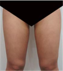 大腿吸脂对比案例_术后