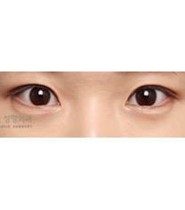 爱琳整形外科部分切开法双眼皮对比图_术后