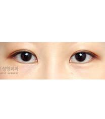 爱琳整形外科开外眼角手术对比图_术后