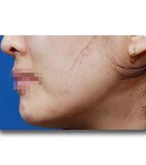 下颌角整形对比案例_术后