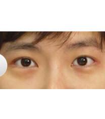 韩国天鹅整形外科眼部综合整形对比图_术后