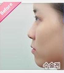 韩国天鹅整形外科隆鼻手术对比图_术前