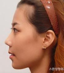 韩国天鹅整形外科双颚手术对比图_术后