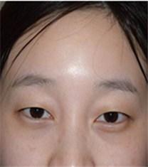 韩国CNM(COANMI)整形外科医院双眼皮案例_术前