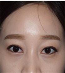 韩国CNM(COANMI)整形外科医院双眼皮案例_术后