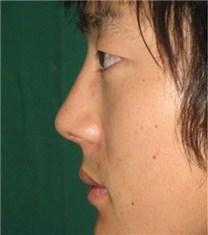 韩国CNM(coanmi)外科隆鼻案例_术后