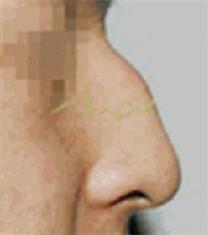 驼峰鼻矫正案例_术前