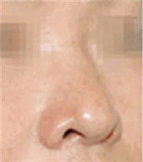 鼻综合整形对比案例_术前