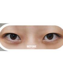 韩国拉里整形医院埋线双眼皮对比图_术前