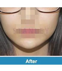 韩国史丹利整形医院注射玻尿酸垫下巴对比图_术后
