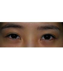 双眼皮对比案例_术前