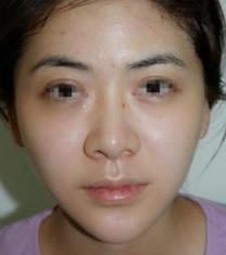韩国史丹利整形医院瘦脸+祛痘对比图_术后