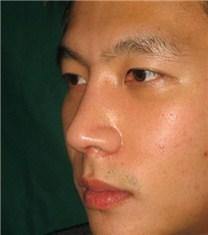 韩国CNM(COANMI)整形外科医院鹰钩鼻案例对比图_术后