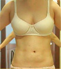 腹部吸脂对比案例