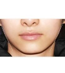 韩国世丽整形医院注射瘦脸对比图