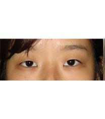 韩国CNMcoanmi外科整形双眼皮手术案例对比图_术前