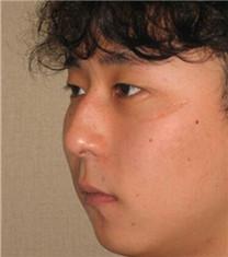 韩国CNMcoanmi外科整形驼峰鼻整形对比案例_术前