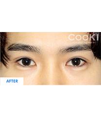 韩国COOKI整形医院双眼皮对比图_术前