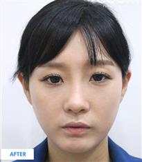 韩国COOKI整形医院双眼皮埋线法对比图_术后