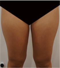 大腿吸脂对比案例_术前