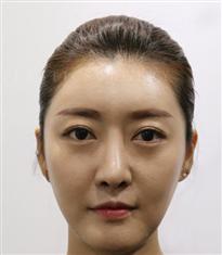 韩国高恩世上整形外科鼻子修复对比图_术后
