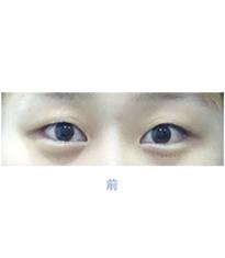韩国高恩世上整形外科双眼皮埋线案例对比图_术前