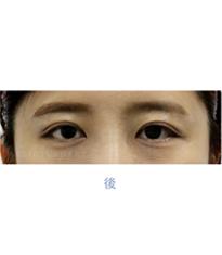 韩国高恩世上整形外科双眼皮修复案例对比图_术后