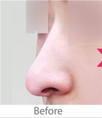 韩国高恩世上整形外科鹰钩鼻矫正案例对比图