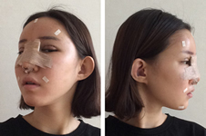 韩国omega医院隆鼻+脂肪填充案例分享!