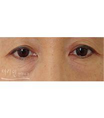 韩国德莱茵医院双眼皮案例对比图?_术前