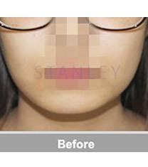 韩国史丹利整形医院注射玻尿酸垫下巴对比图_术前