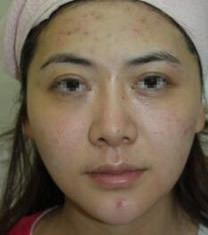 韩国史丹利整形医院瘦脸+祛痘对比图_术前