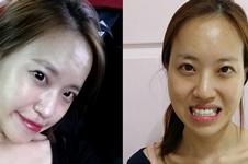 韩国id医院做双鄂手术优势有哪些?