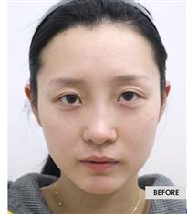 韩国COOKI整形医院双眼皮埋线法对比图_术前